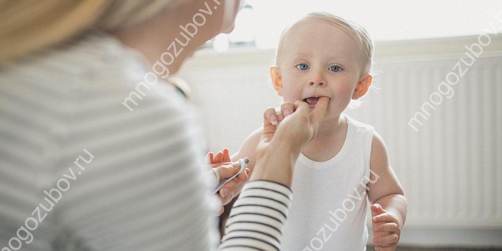 Виды гелей для прорезывания зубов
