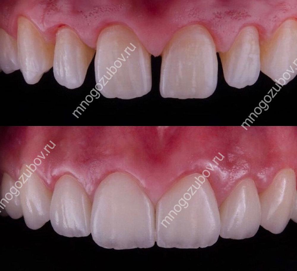 Пример исправления зубов винирами