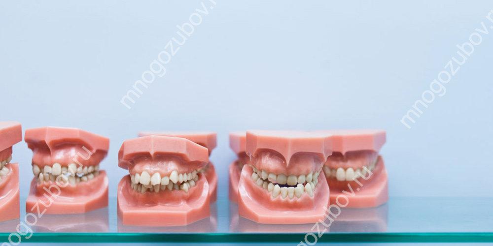 Брекеты с шиповидными зубами