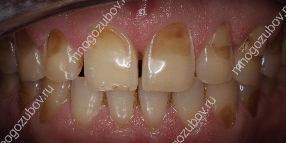 Фото эрозии зубов