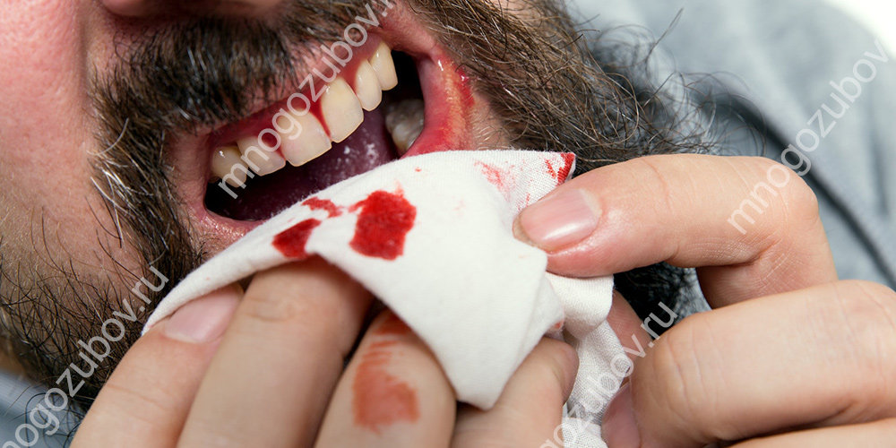 Идет кровь после удаления зуба