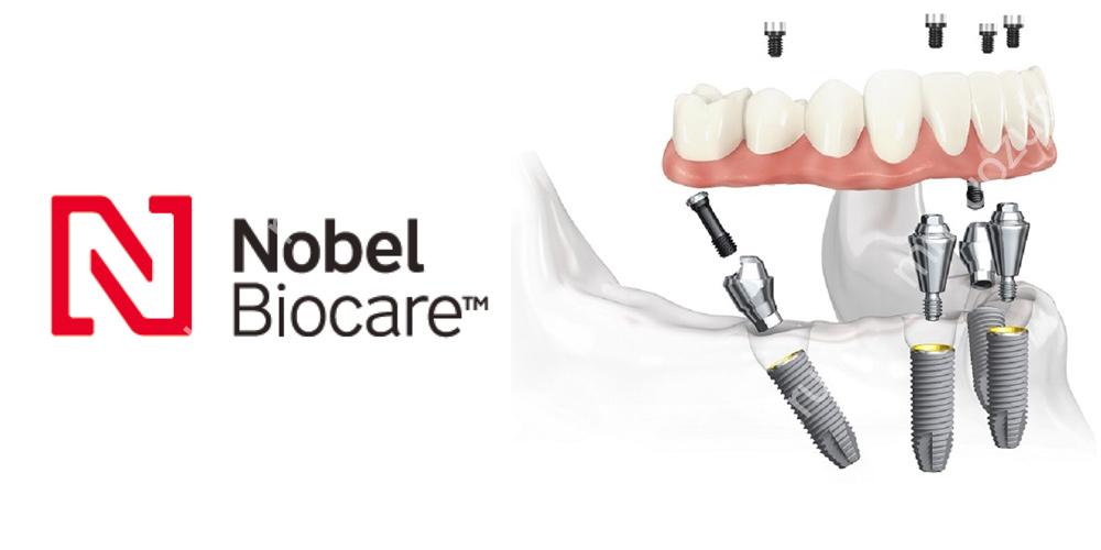 Имплантация All-on-4 от Nobel Biocare