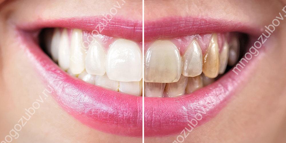 Почему возникает пигментация зубов