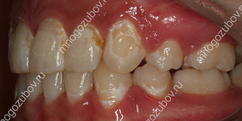 Пятна на зубах после брекетов