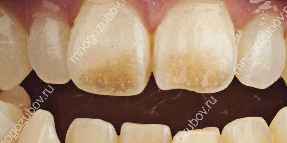 Фото: Пигментация зубов у пациента