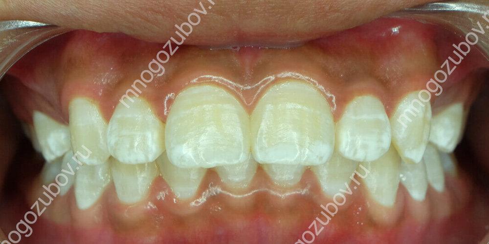 Флюороз на зубах