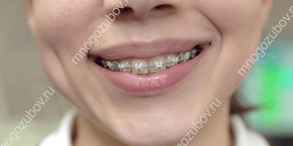 Пульсация в зубе при исправлении прикуса