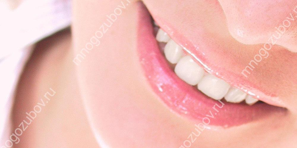 Истонченная зубная эмаль
