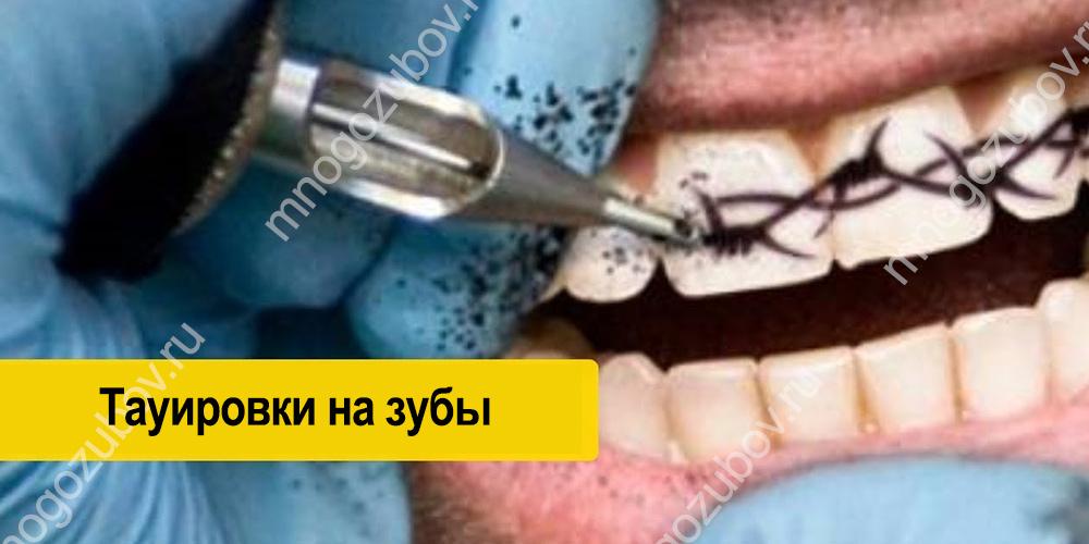 Как делают татуировки на зубах