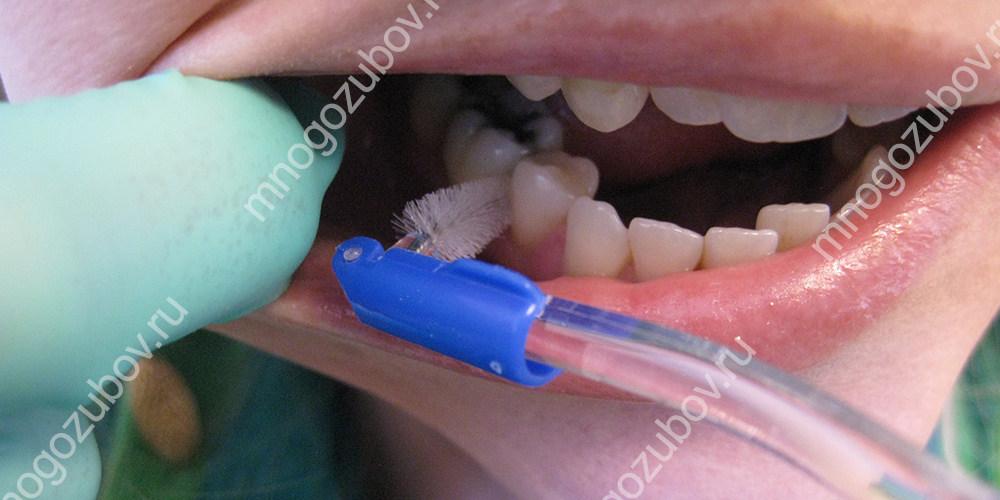 Способы удаления налета на зубах