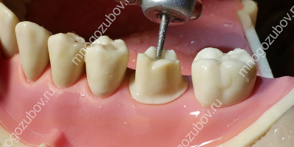 Проблемы после обточки зубов