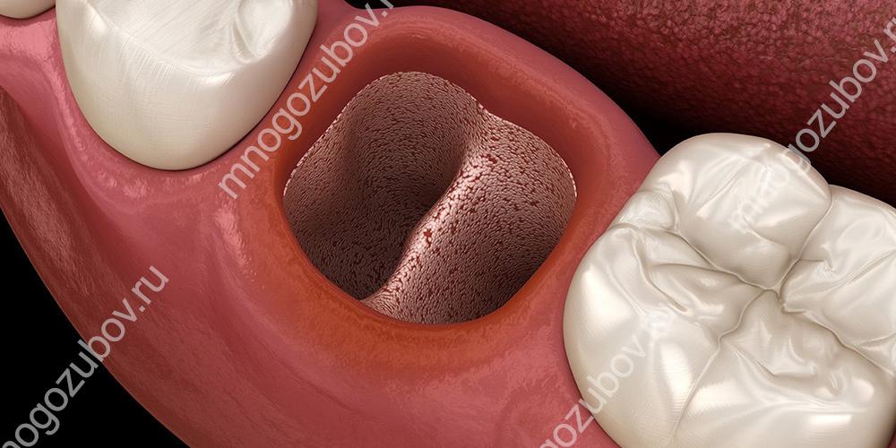 Сухая лунка после удаления зуба