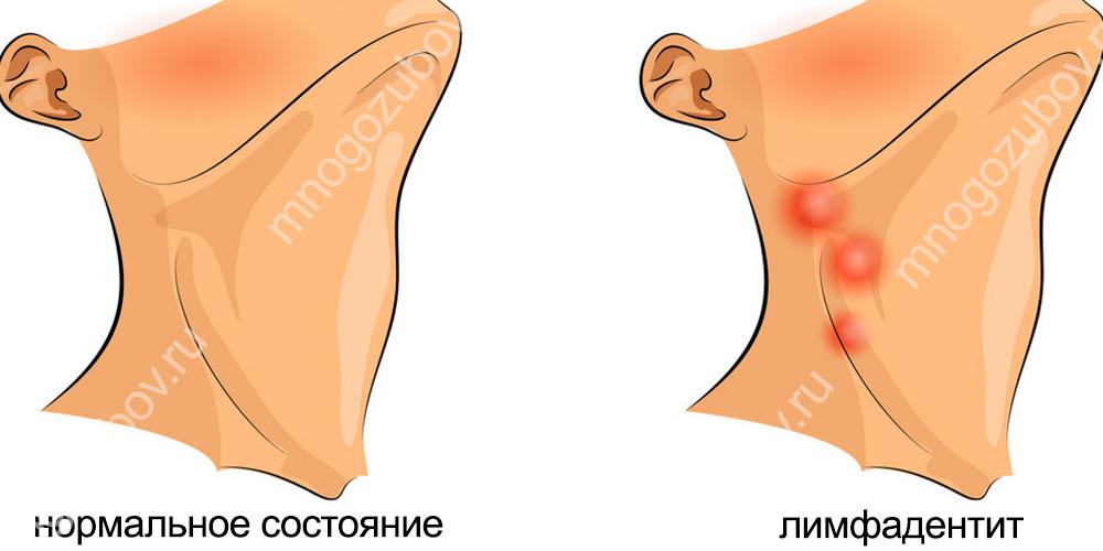 При игнорировании воспаления может развиться лимфаденит