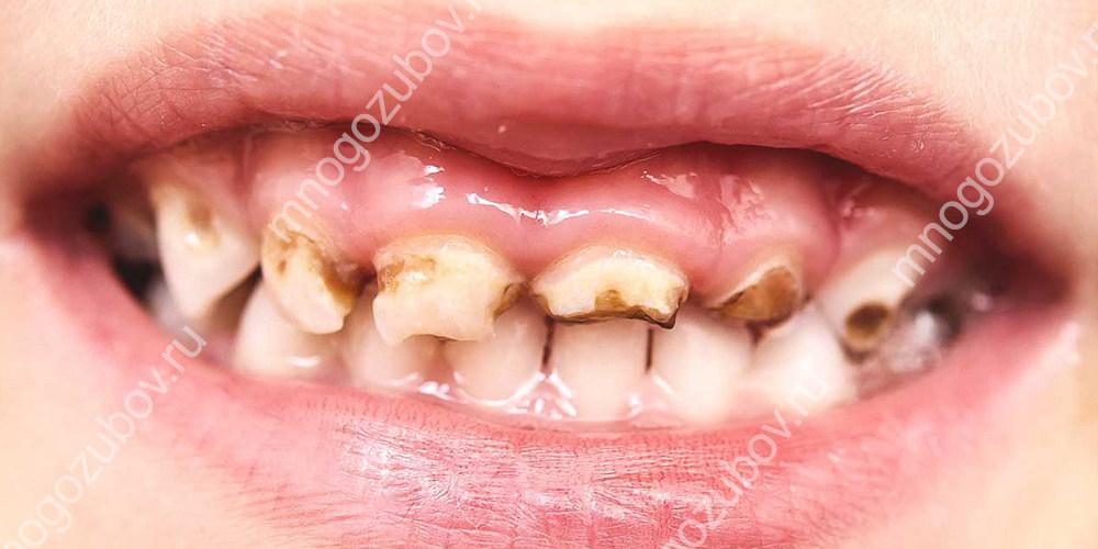 Портятся молочные зубы