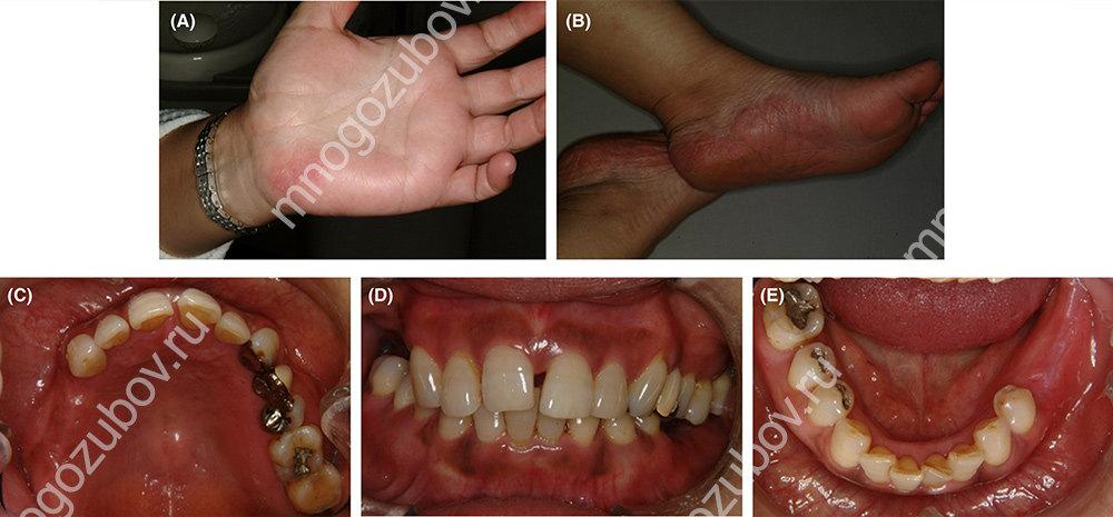 Фото: пример аллергии на зубные протезы