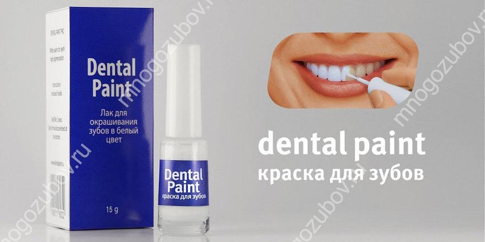 Применение dental paint для отбеливания