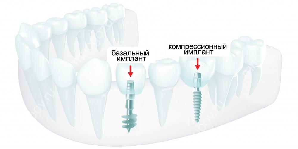 Отличие компрессионных имплантов от базальных