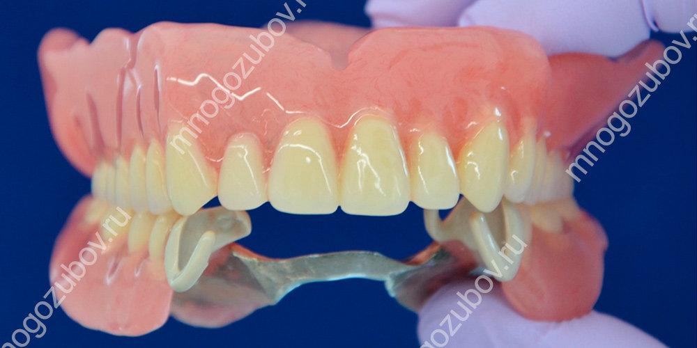 Пластмассовый зубной протез