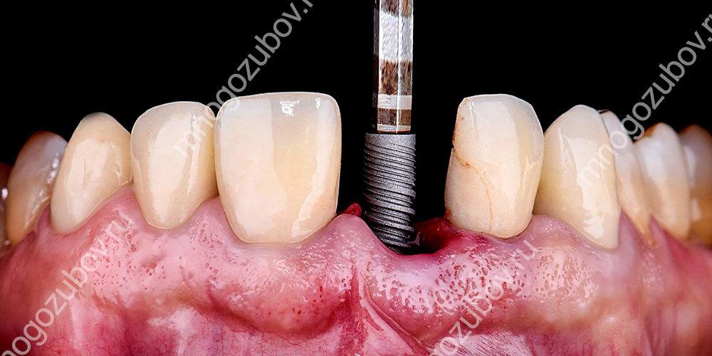 Какие этапы имплантации зубов