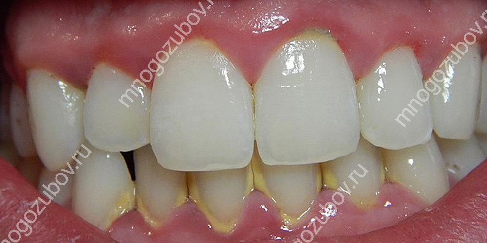 Возникновение отложений на зубах