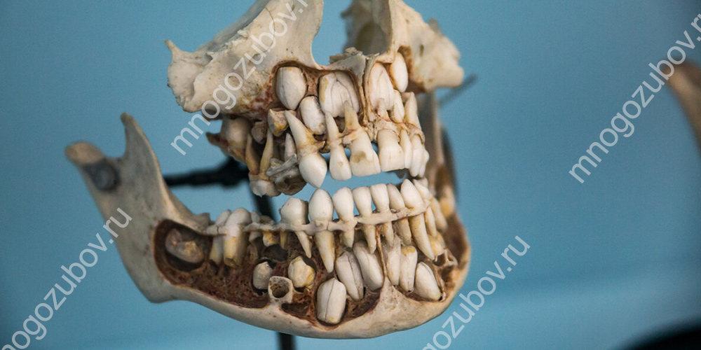 Молочные и постоянные зубы на модели