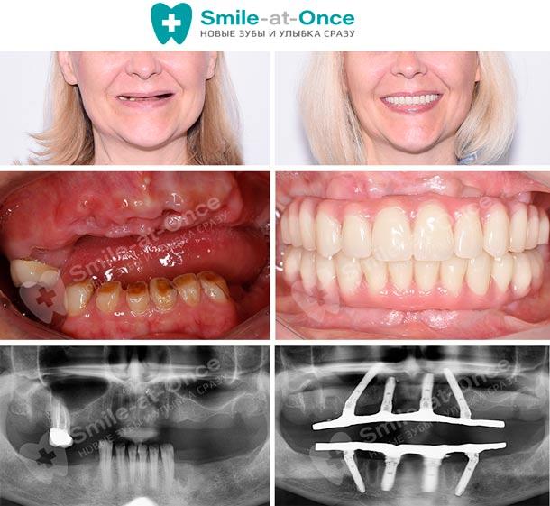 Пример восстановления всех зубов за 3 дня