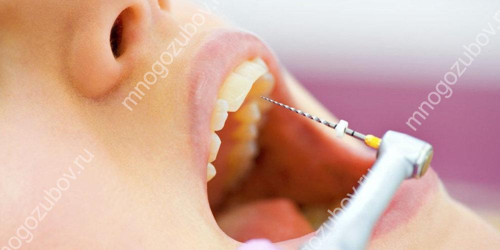 Хирургический метод удаления нерва зуба