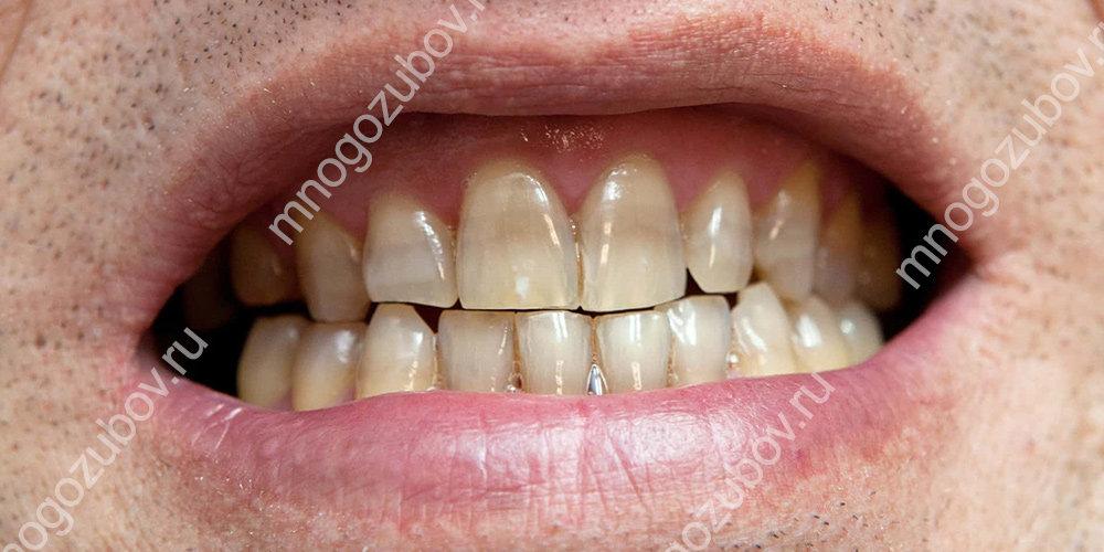 Развитие тетрациклиновых зубов