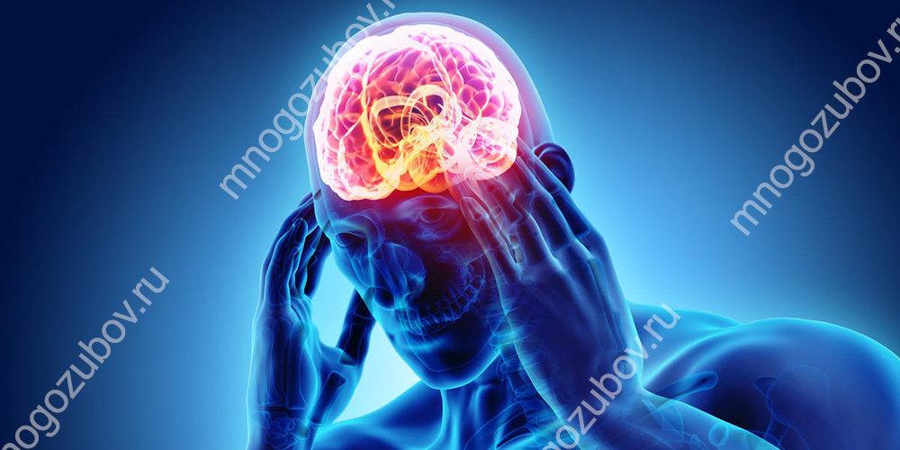 Головная боль как реакция на медпрепараты