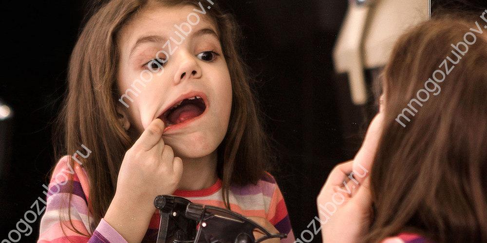 причины появления волдырей во рту у ребенка