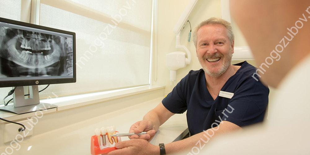 сколько зубных имплантов устанавливать