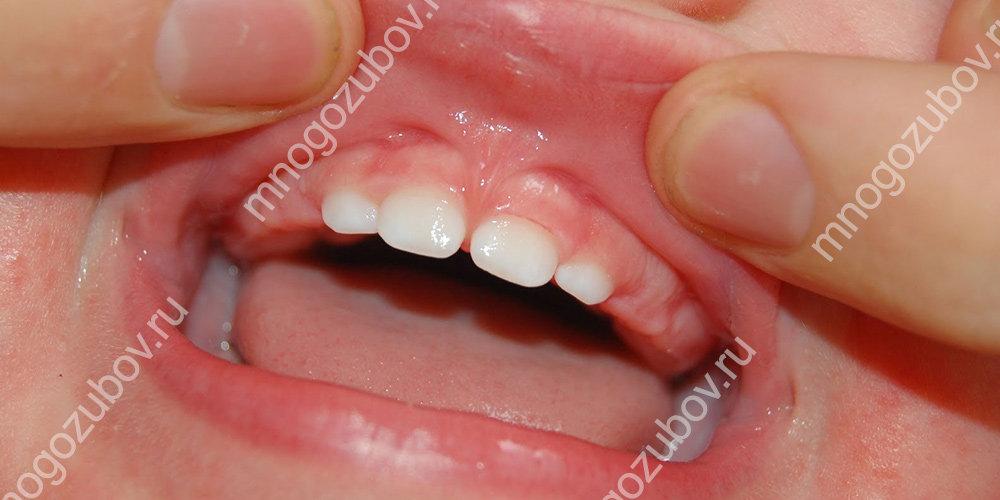 уздечка и промежутки между зубами