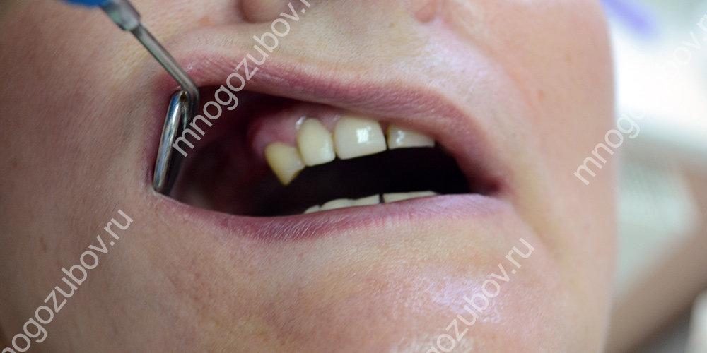 отсутствие нескольких зубов
