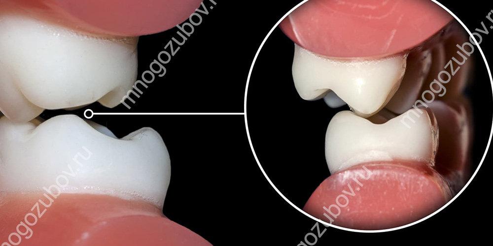 Чувствительность зубов при стираемости