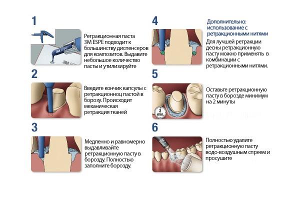 Этапы проведения процедуры