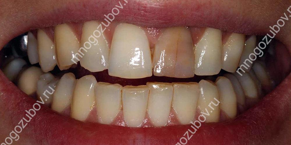 дисколорация зуба