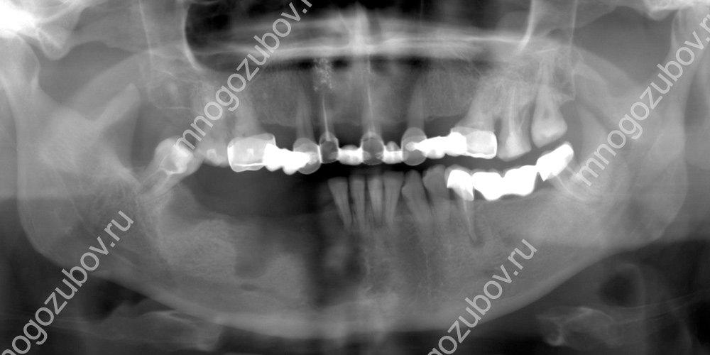 Рентген снимок челюсти с остеомиелитом