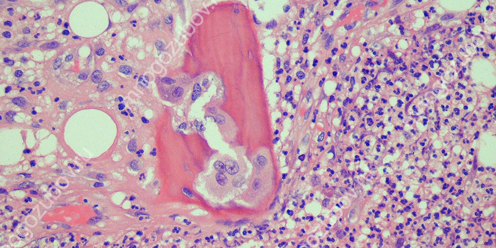 Заболевание остеомиелитом под микроскопом